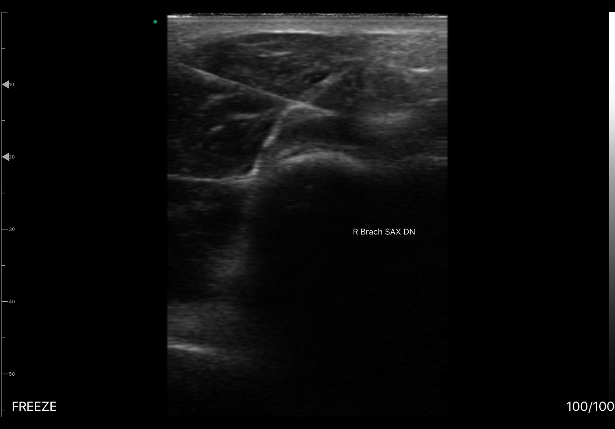 Brachialis muscle Scan result