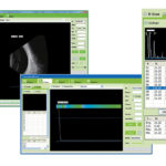 Ophthalmic Ultrasound ScannerSIFULTRAS-8.1 scan