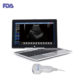 Laptop Ultrasound Scanner WiFi DICOM