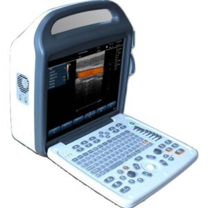 portable-color-doppler-vascular-ultrasound-scanner-sifultras-6-3