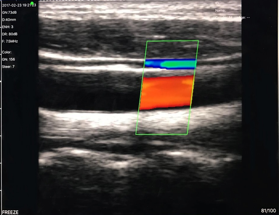 Linear Wireless Ultrasound Scanner SIFULTRAS-5.34 - Color Doppler SCAN-RESULT