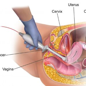 transvaginal ultrasound scanner uses