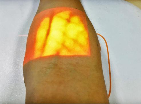 Infrared Vein Viewer: SIFVEIN-4.10