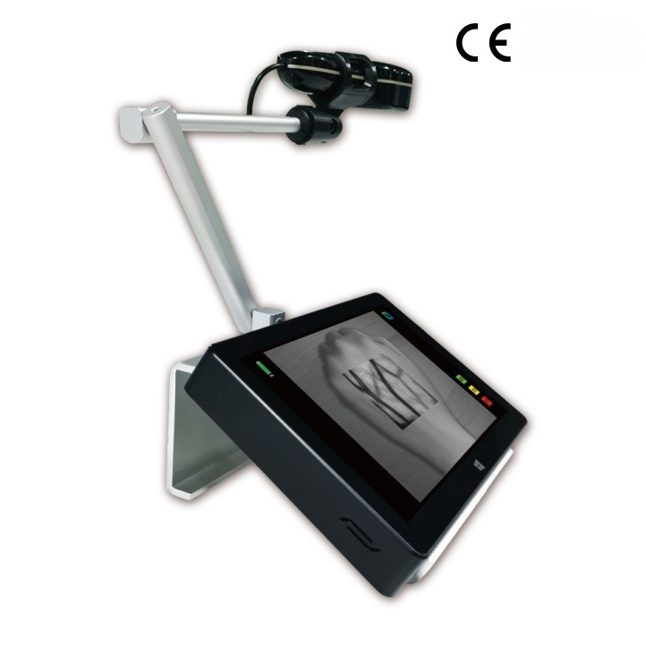 Portable-Infrared-Vein-Finder-Vein-detector-and-vein-viewer-device-SIFVEIN-5.1