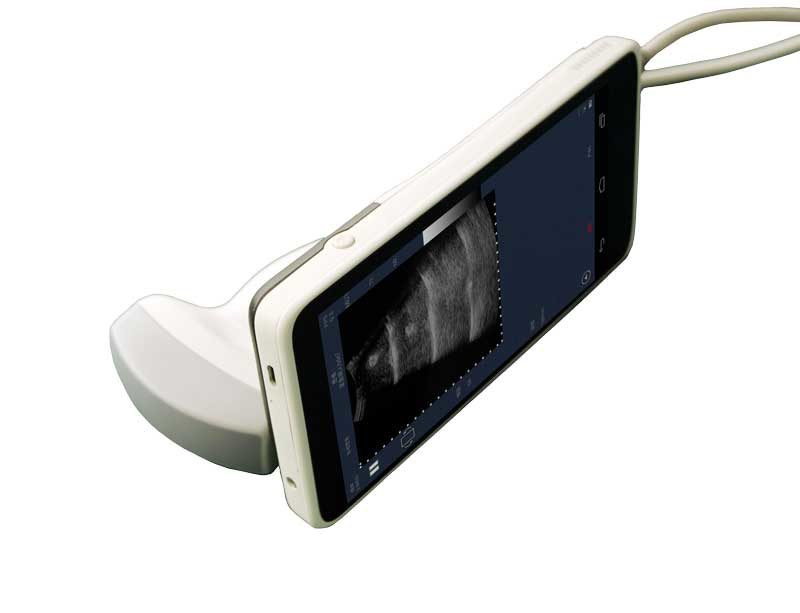 Bluetooth Color Ultrasound Scanner Sifultras 2.21