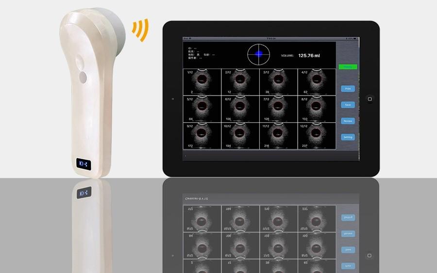 Wireless Bladder Ultrasound Scanner 4D array scan SIFULTRAS-5.5 full bladder