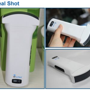 color convex ultrasound scanner pocket sized