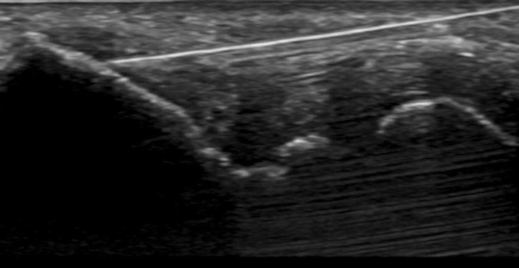 Dry needling ultrasound scan