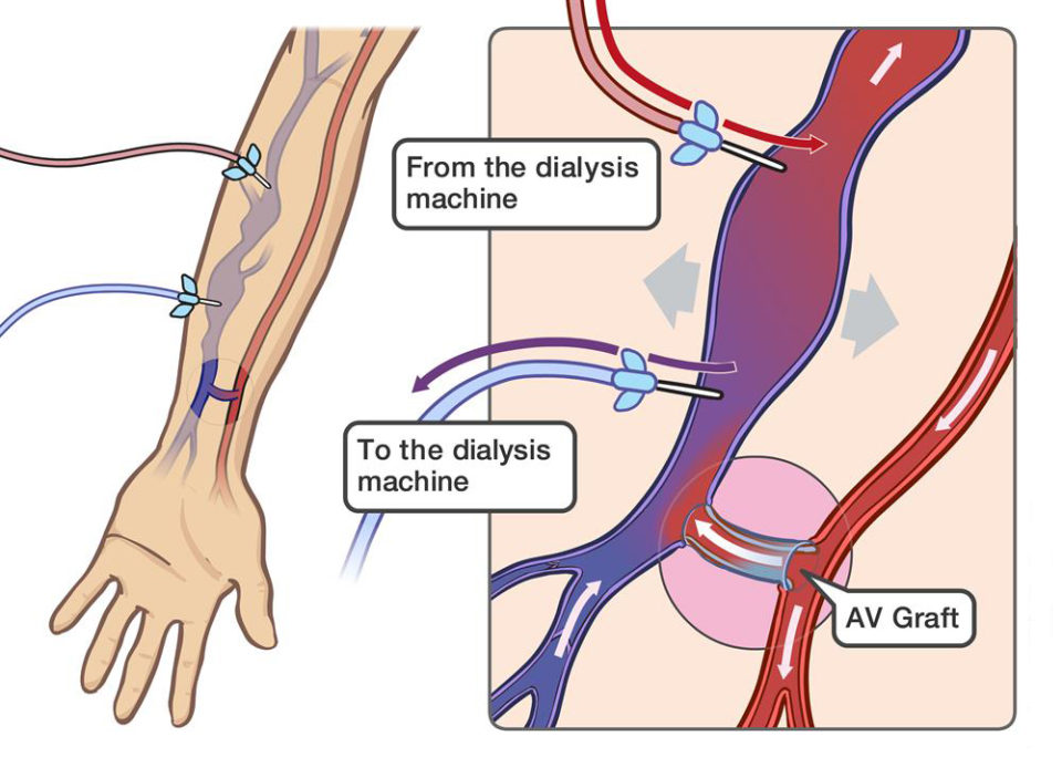 Insertion of percutaneous hemodialysis catheter