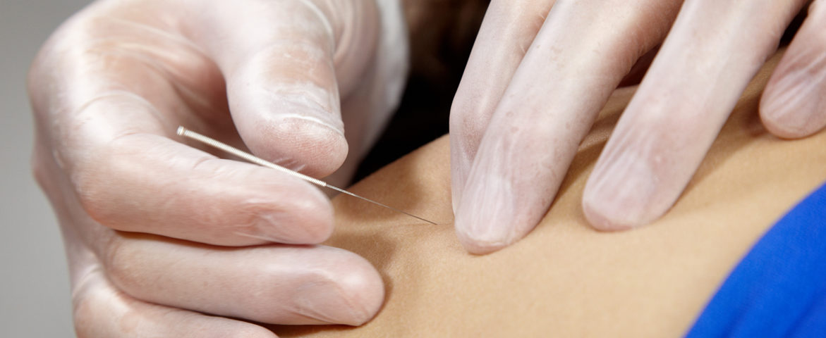 DN - Dry needling
