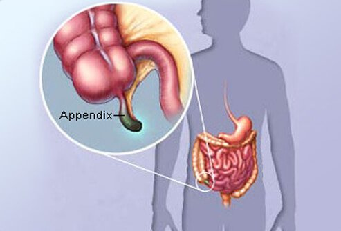Appendicitis Abnormal Appendix