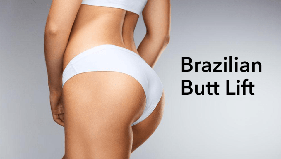 BBL Brazilian Butt Lift