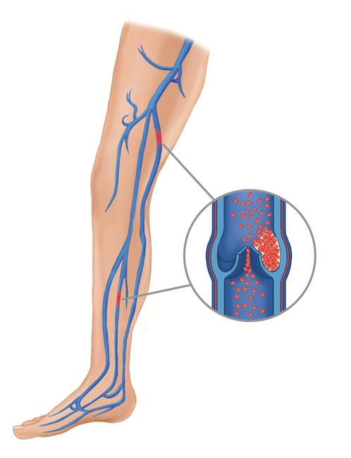Deep Vein Thrombosis preview