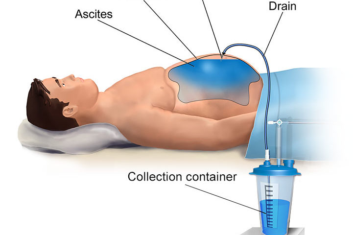 Paracentesis, The process of aspirating fluid from the abdomen