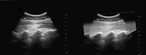 """Ultrasound probe on the sacrum and multiple interspaces in the longitudinal planes gives the image of """"saw"""" pattern."""