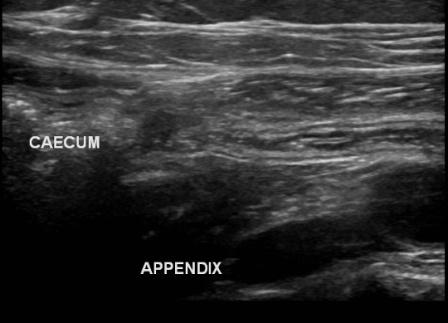 Appendicitis : appendix and caecum