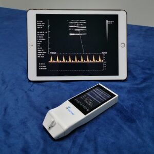 Built-in Screen Linear Ultrasound Scanner SIFULTRAS-5.14 Double Screen