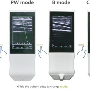 SIFULTRAS-5.14 PW Bmode Color Doppler