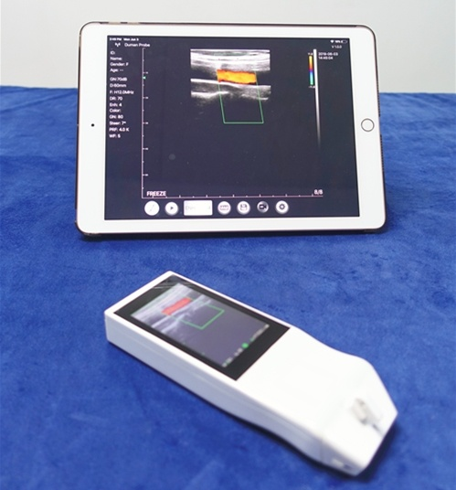 Built-in Screen Linear Ultrasound Scanner SIFULTRAS-5.14  dual screen
