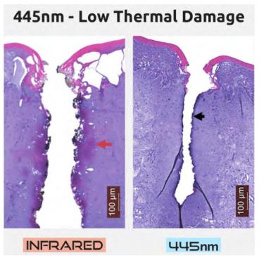 Dentistry Diode Laser System SIFLASER-4.0 low thermal damage