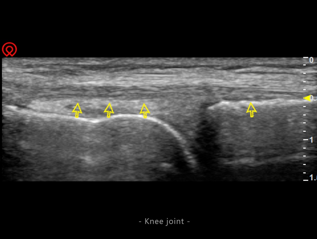 Knee Joint Scan