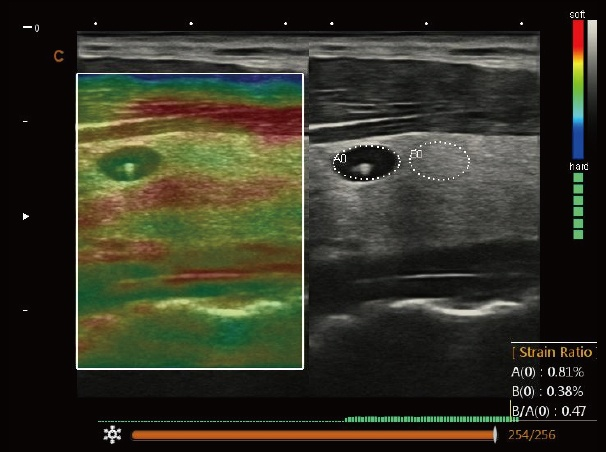 Color Doppler Laptop Multi-Head Ultrasound Scanner SIFULTRAS-6.6 Thyroid, Elastography Ultrasound Result