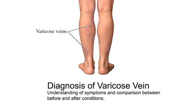 Desk Type Vein Finder SIFVEIN-5.41 Infrared Vein Imaging Transilluminator varicose vein