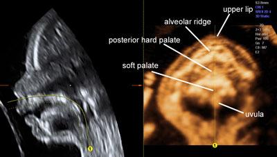 Fetal Morphology Assessment Ultrasound Scan FMA