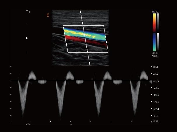 Color Doppler Laptop Multi-Head Ultrasound Scanner SIFULTRAS-6.6 Vessel, PW Mode Scan Result