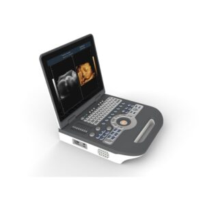 Color Doppler Notebook Ultrasound SCanner SIFULTRAS-8.31