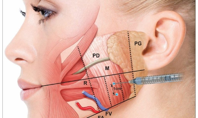 Jaw Muscle Injection