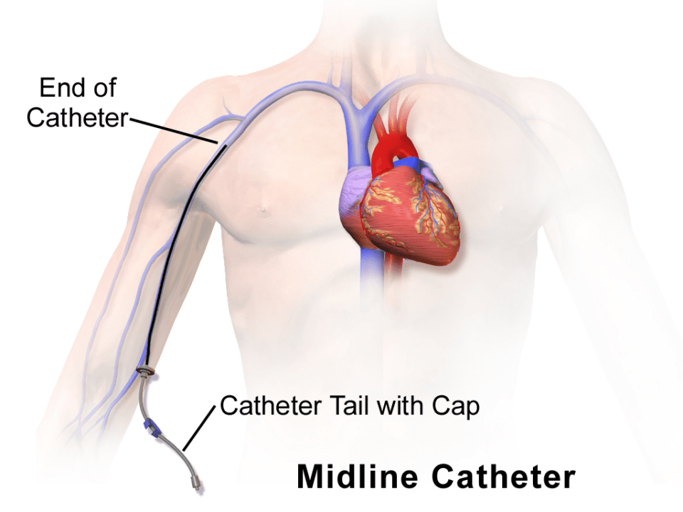 Midline Catheter Insertion
