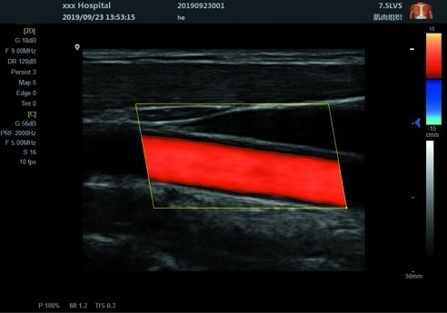 Scan Results of Notebook Color Doppler UltrasoundScanner SIFULTRAS-8.31