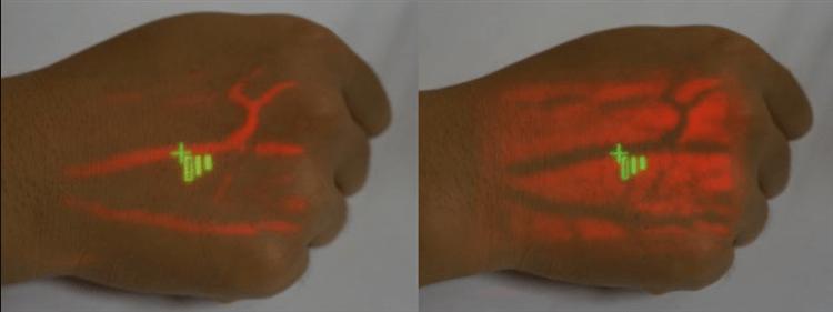 Vein Finder SIFVEIN-6.01 With Table Bracket red light