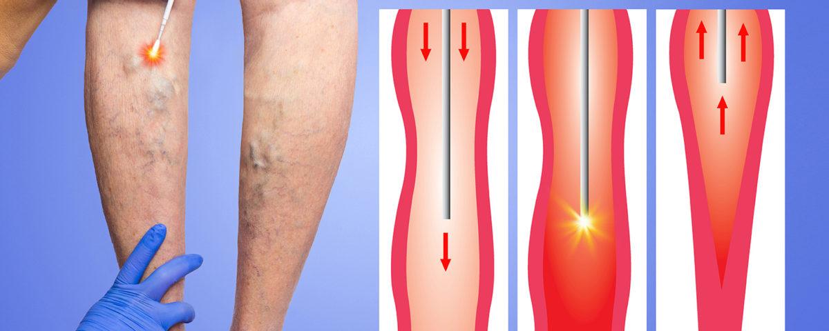 Endovenous Laser Treatment EVLT