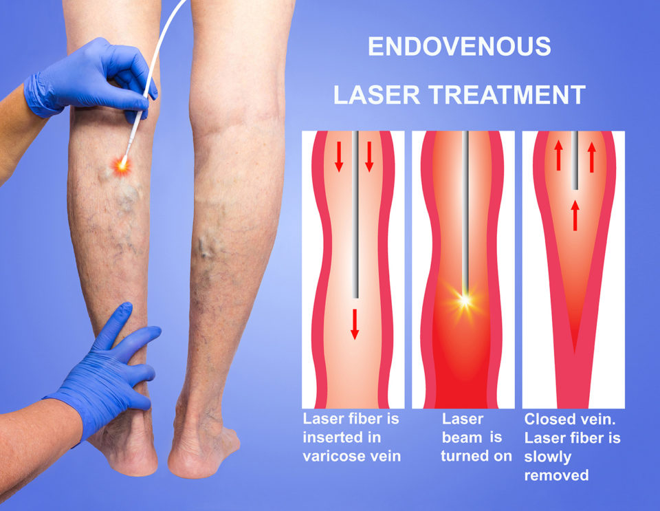 Endovenous Laser Treatment EVLT