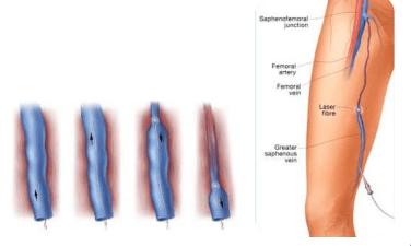 Medical Diode Laser Systems SIFLASER-3.3, FDA Endovenous