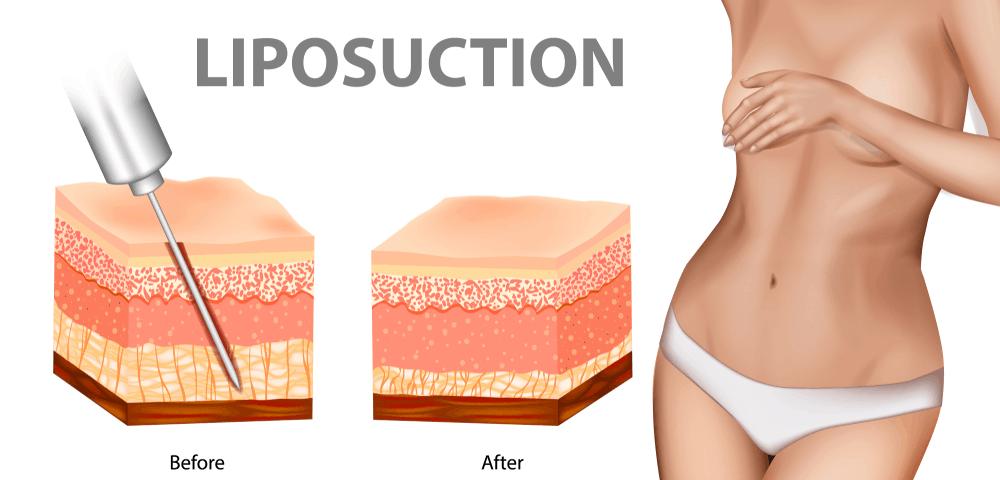 Liposuction Sifsof