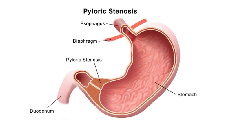 Hypertrophic pyloric stenosis