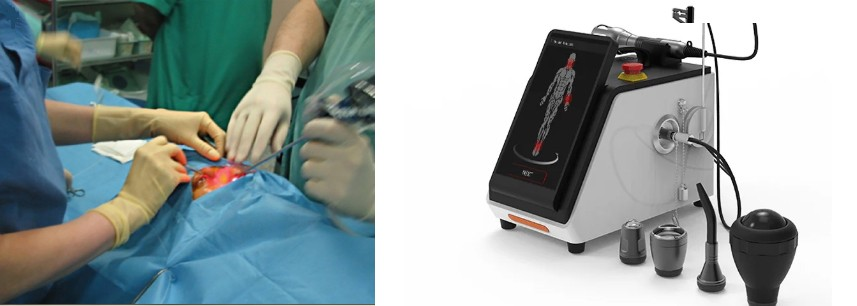 Laser-Assisted Dacryocystorhinostomy (L-DCR)