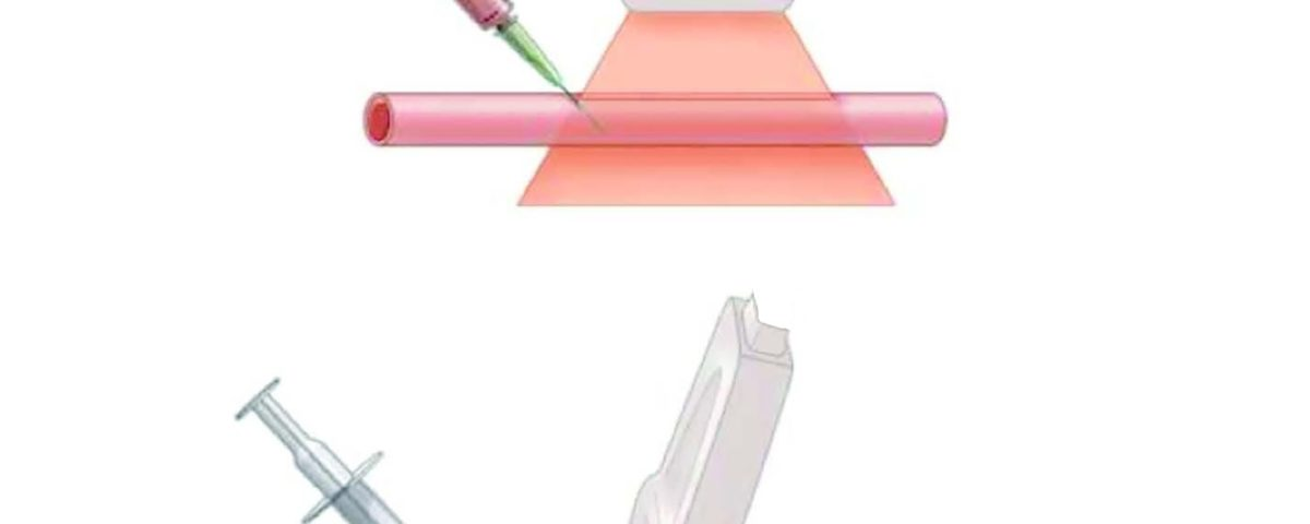 Vascular cannulation