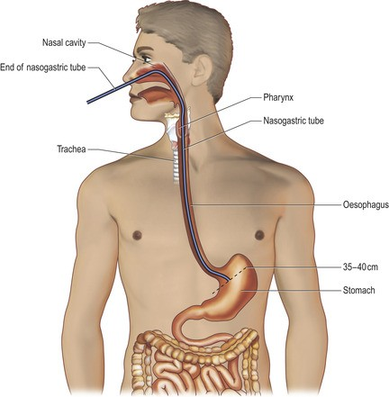 nasogastric tube placement