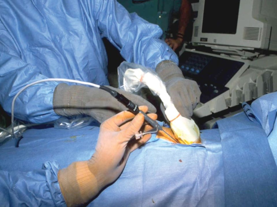 laparoscopy and ultrasound