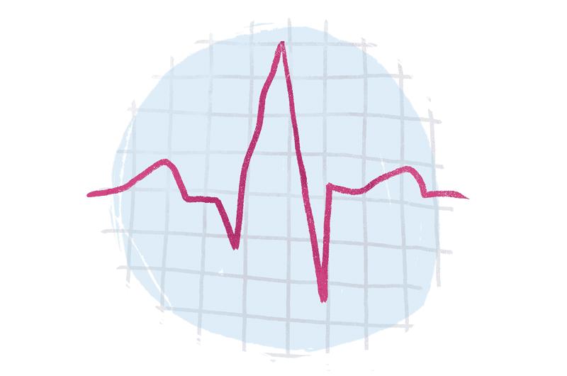 ECK EKG