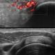 musculosketal-ultrasound-1