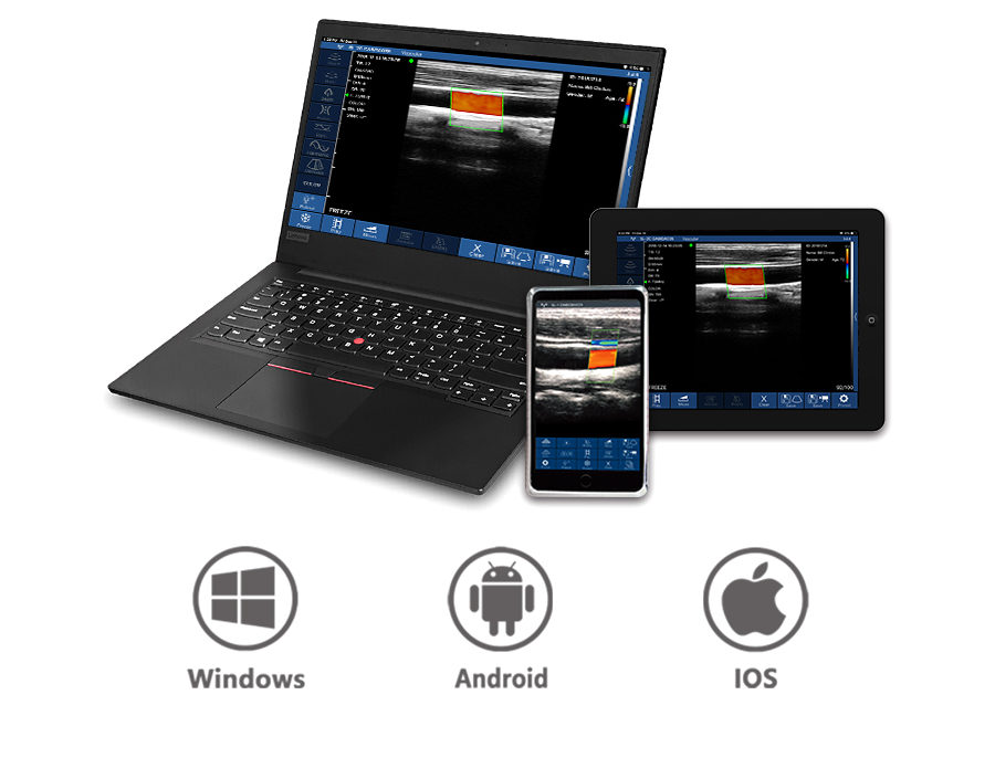 Color Doppler USB and Wireless 3 in 1 Ultrasound Scanner: SIFULTRAS-3.33 working system