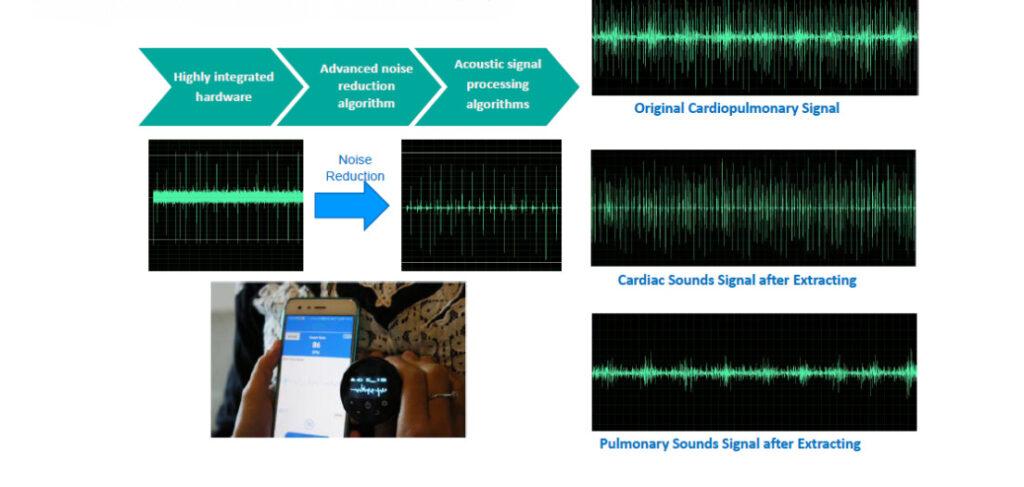FDA Bluetooth Cardio Pulmonary Stethoscope SIFSTETHO-1.0 features