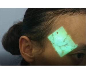 Handheld Infrared Vein Finder SIFVEIN-5.0 different uses