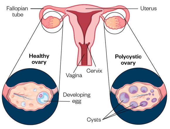 Ultrasound Scanner for Polycystic Ovarian Syndrome Assessment