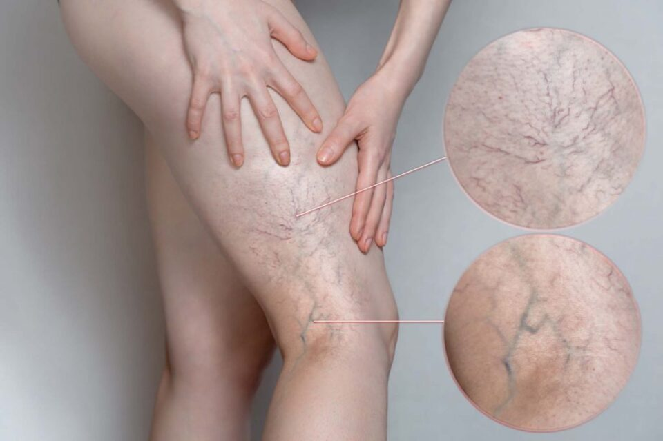 Sclerotherapy for Varicose and Spider Veins